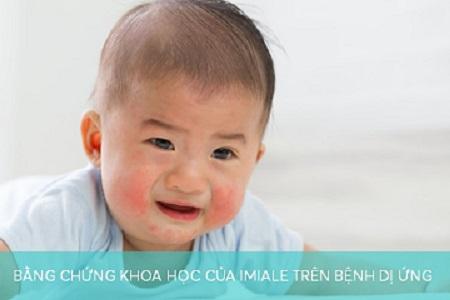 Bằng chứng khoa học của Imiale trên bệnh dị ứng 450 300