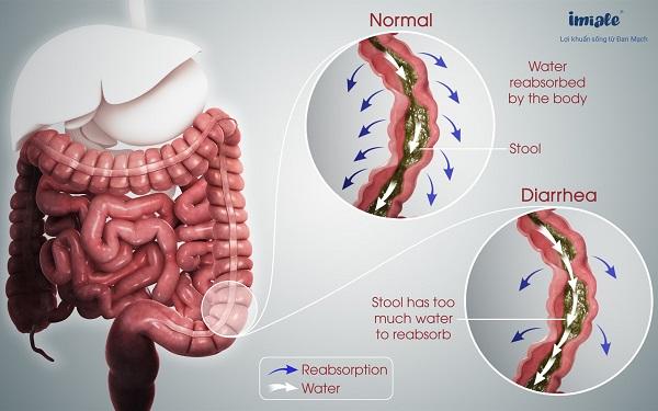 cơ chế tiêu chảy