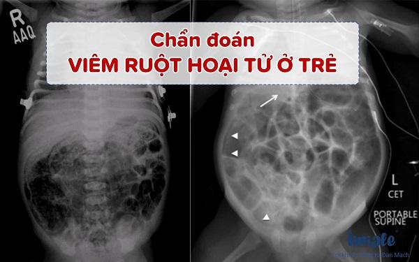 Chẩn đoán viêm ruột hoại tử ở trẻ