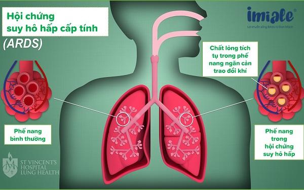 2.4 Các vấn đề về hô hấp 1