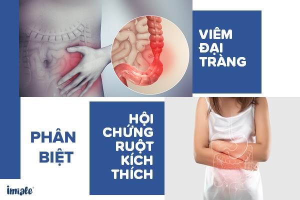 Viêm đại tràng và Hội chứng ruột kích thích: Hiểu đúng - điều trị hiệu quả 1