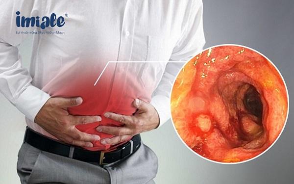 triệu chứng viêm đại tràng mạn tính