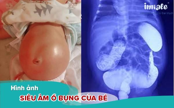 Hình ảnh siêu âm ổ bụng của trẻ